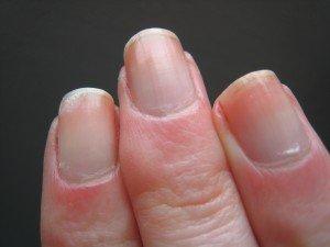 Chouchoutage main et ongles #4: les soins Nailtiques dans soins IMG_2472-300x225