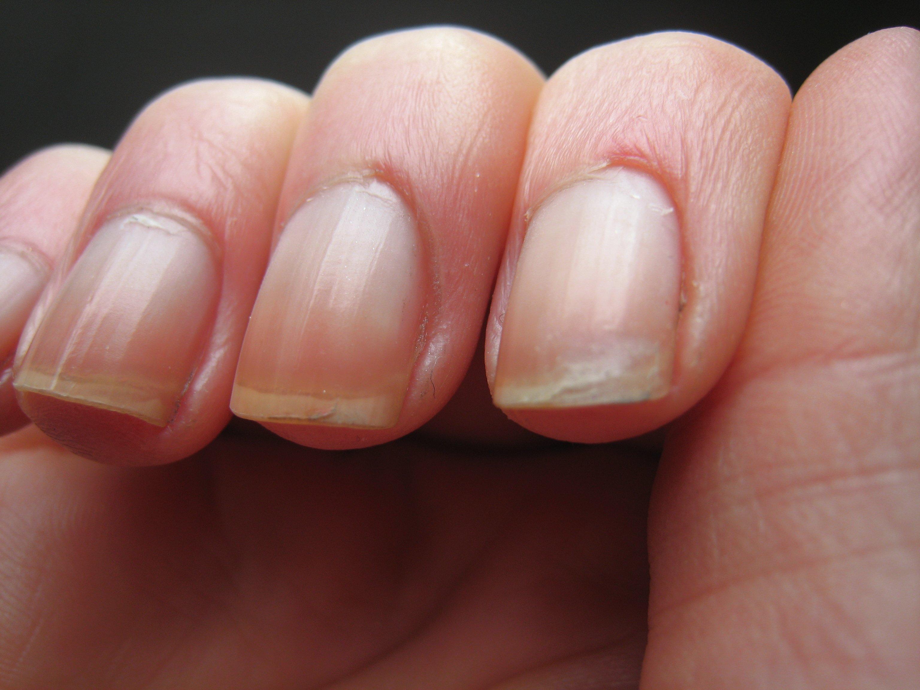 Le gel pour la peau contre le psoriasis
